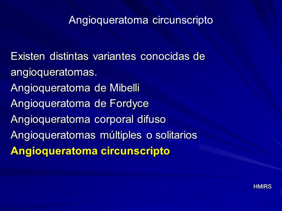 Angioqueratoma circunscripto Existen distintas variantes conocidas de angioqueratomas. Angioqueratoma de Mibelli Angioqueratoma de Fordyce Angioquerat