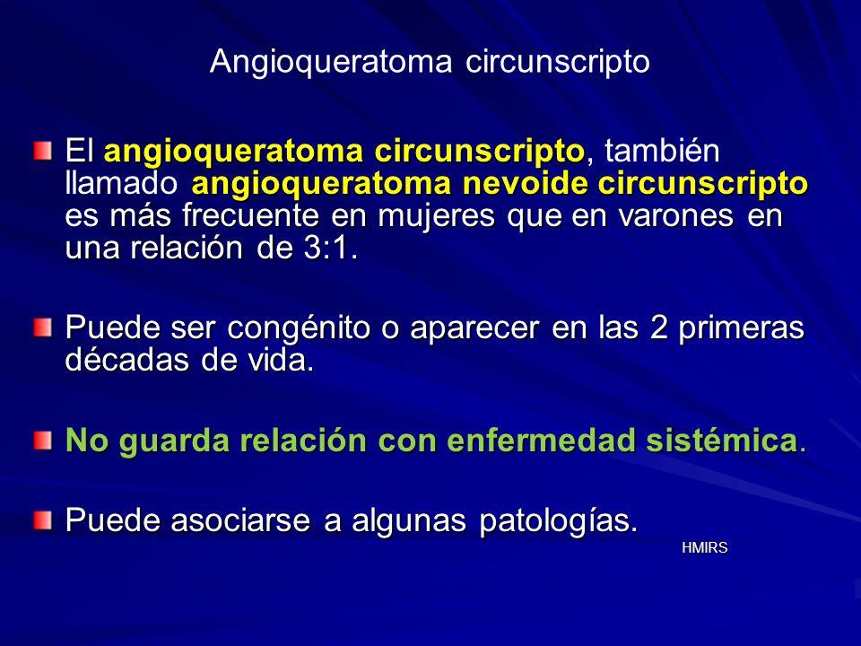 Angioqueratoma circunscripto El angioqueratoma circunscripto angioqueratoma nevoide circunscripto más frecuente en mujeres que en varones en una relac