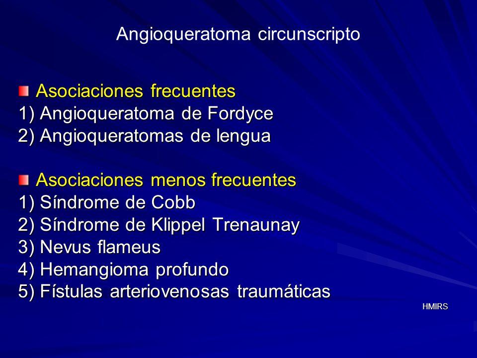 Angioqueratoma circunscripto Asociaciones frecuentes 1) Angioqueratoma de Fordyce 2) Angioqueratomas de lengua Asociaciones menos frecuentes 1) Síndro