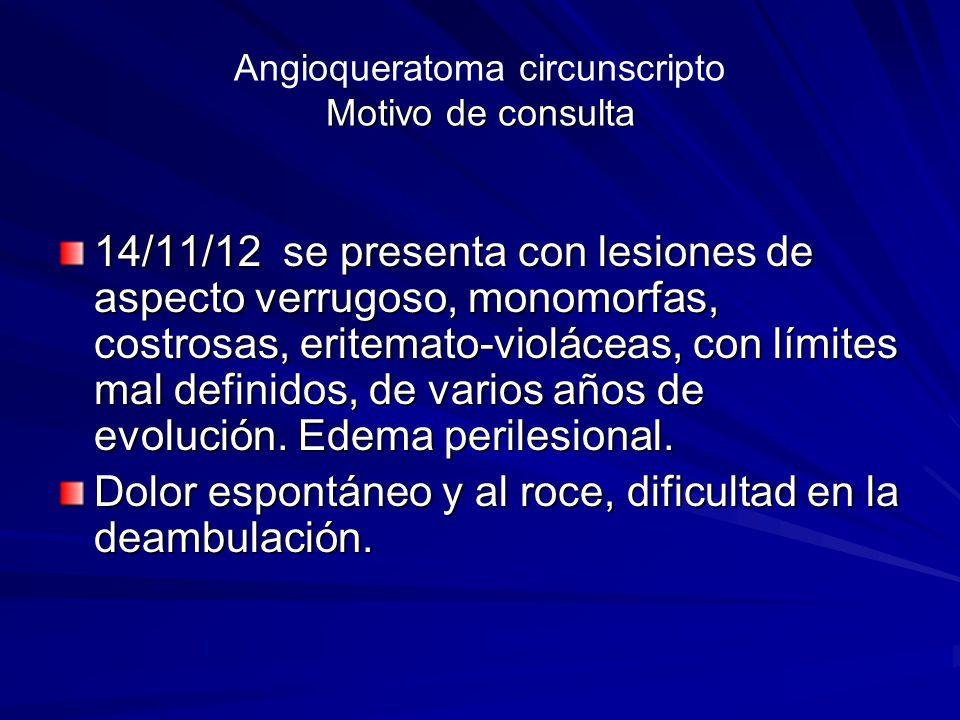 Angioqueratoma circunscripto Asociaciones frecuentes 1) Angioqueratoma de Fordyce 2) Angioqueratomas de lengua Asociaciones menos frecuentes 1) Síndrome de Cobb 2) Síndrome de Klippel Trenaunay 3) Nevus flameus 4) Hemangioma profundo 5) Fístulas arteriovenosas traumáticas HMIRS HMIRS HMIRS