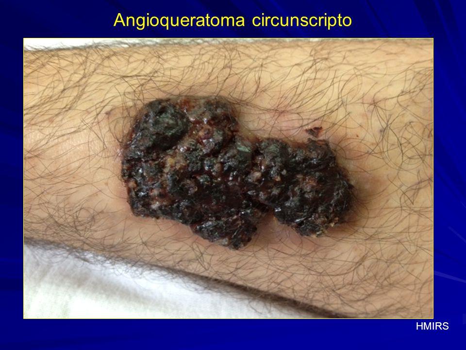 Antecedentes personales Angioqueratoma circunscripto Antecedentes personales Genu varu, en tratamiento en traumatología.