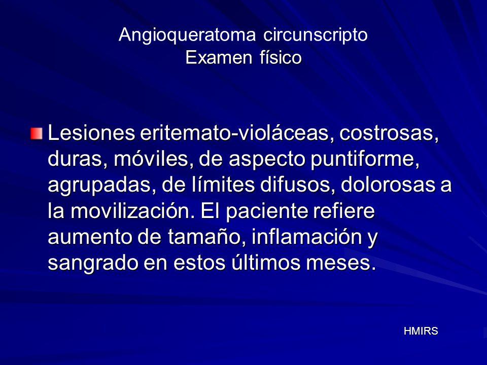 Examen físico Angioqueratoma circunscripto Examen físico Lesiones eritemato-violáceas, costrosas, duras, móviles, de aspecto puntiforme, agrupadas, de