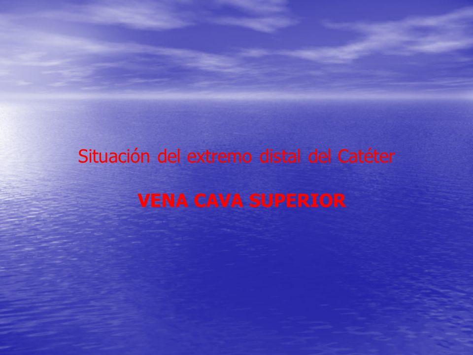 Situación del extremo distal del Catéter VENA CAVA SUPERIOR