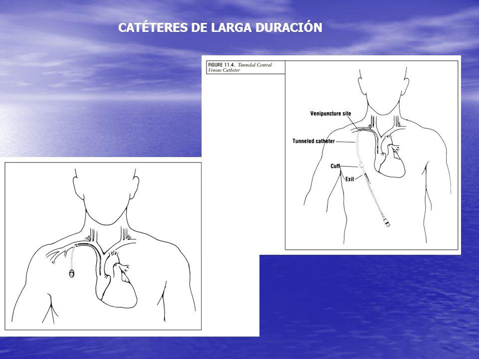 CATÉTERES DE LARGA DURACIÓN
