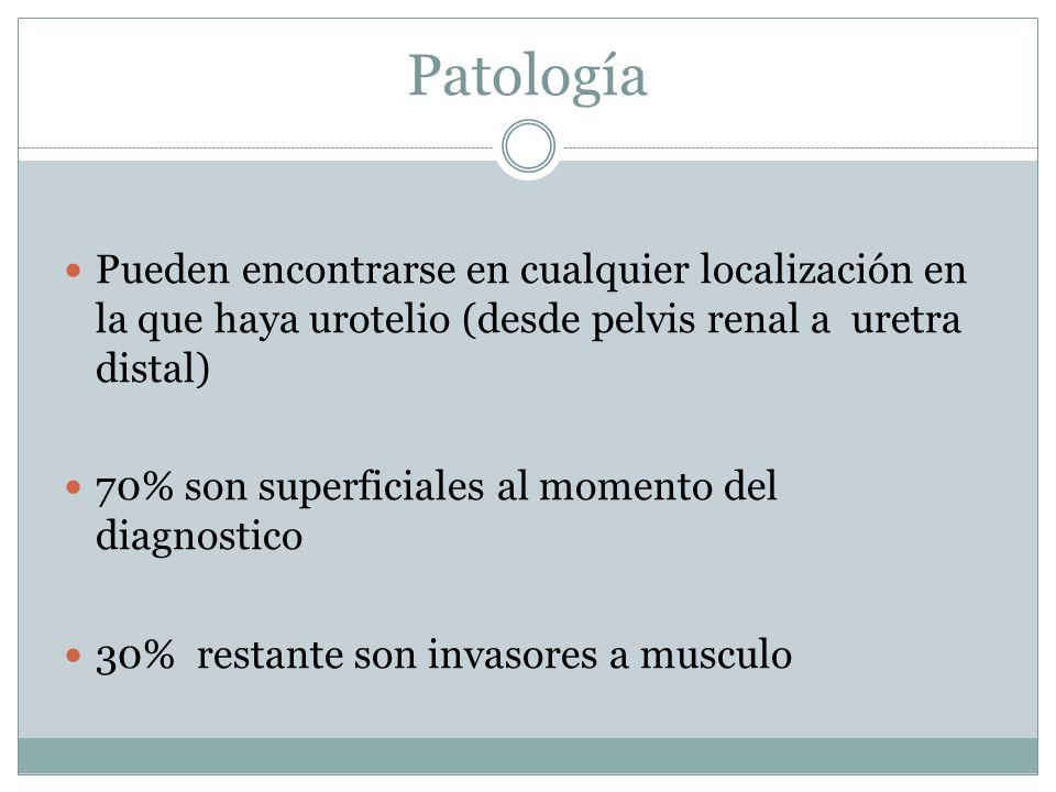Patología Pueden encontrarse en cualquier localización en la que haya urotelio (desde pelvis renal a uretra distal) 70% son superficiales al momento d