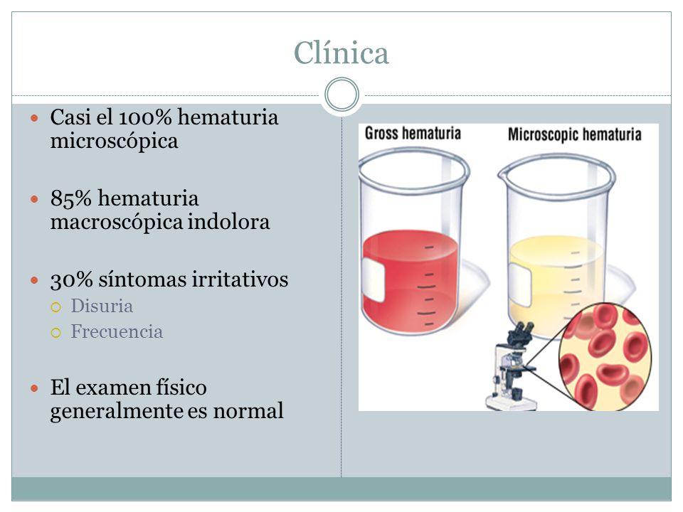 Clínica Casi el 100% hematuria microscópica 85% hematuria macroscópica indolora 30% síntomas irritativos  Disuria  Frecuencia El examen físico gener