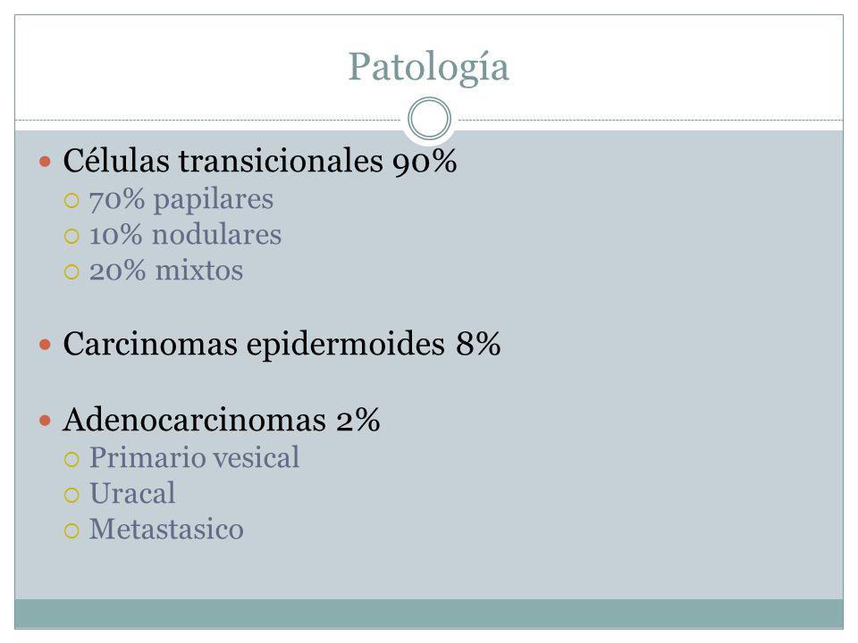 Patología Células transicionales 90%  70% papilares  10% nodulares  20% mixtos Carcinomas epidermoides 8% Adenocarcinomas 2%  Primario vesical  U