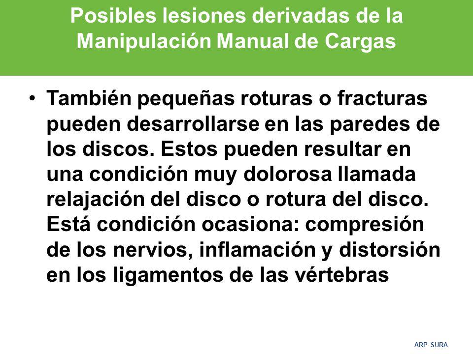 ARP SURA Posibles lesiones derivadas de la Manipulación Manual de Cargas COLUMNA VERTEBRAL Aunque la estructura de la columna y los músculos que la unen son fuertes y resistentes, sostener o repetir esfuerzos puede resultar en la fatiga muscular, tensiones o daños.