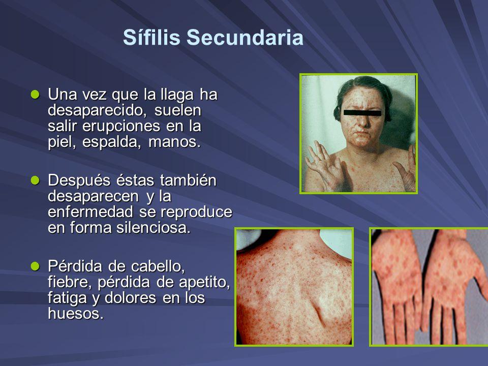 Sífilis Secundaria Una vez que la llaga ha desaparecido, suelen salir erupciones en la piel, espalda, manos. Una vez que la llaga ha desaparecido, sue