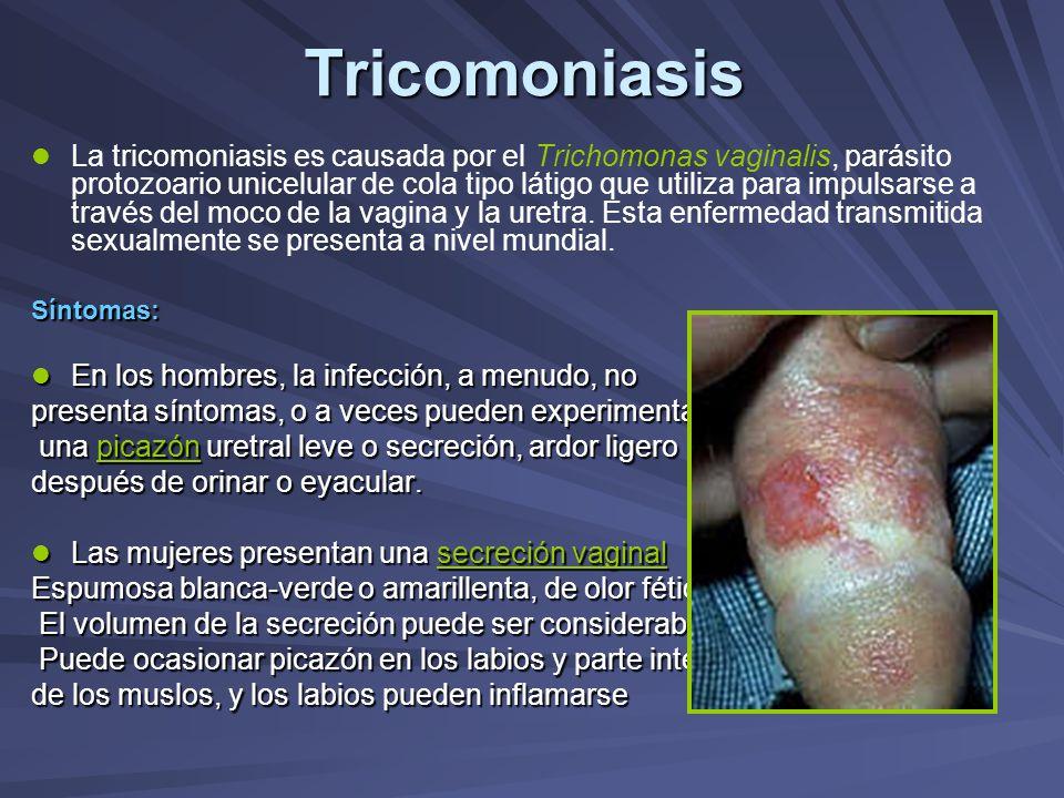 Tricomoniasis La tricomoniasis es causada por el Trichomonas vaginalis, parásito protozoario unicelular de cola tipo látigo que utiliza para impulsars