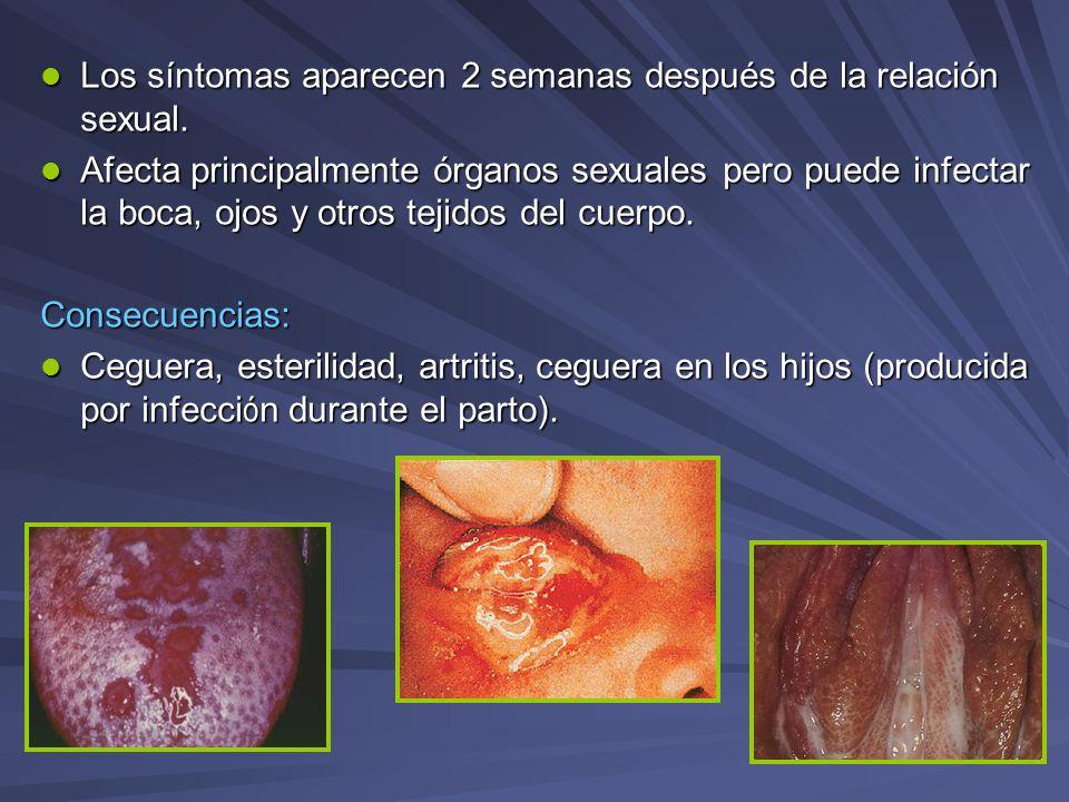 Los síntomas aparecen 2 semanas después de la relación sexual. Los síntomas aparecen 2 semanas después de la relación sexual. Afecta principalmente ór