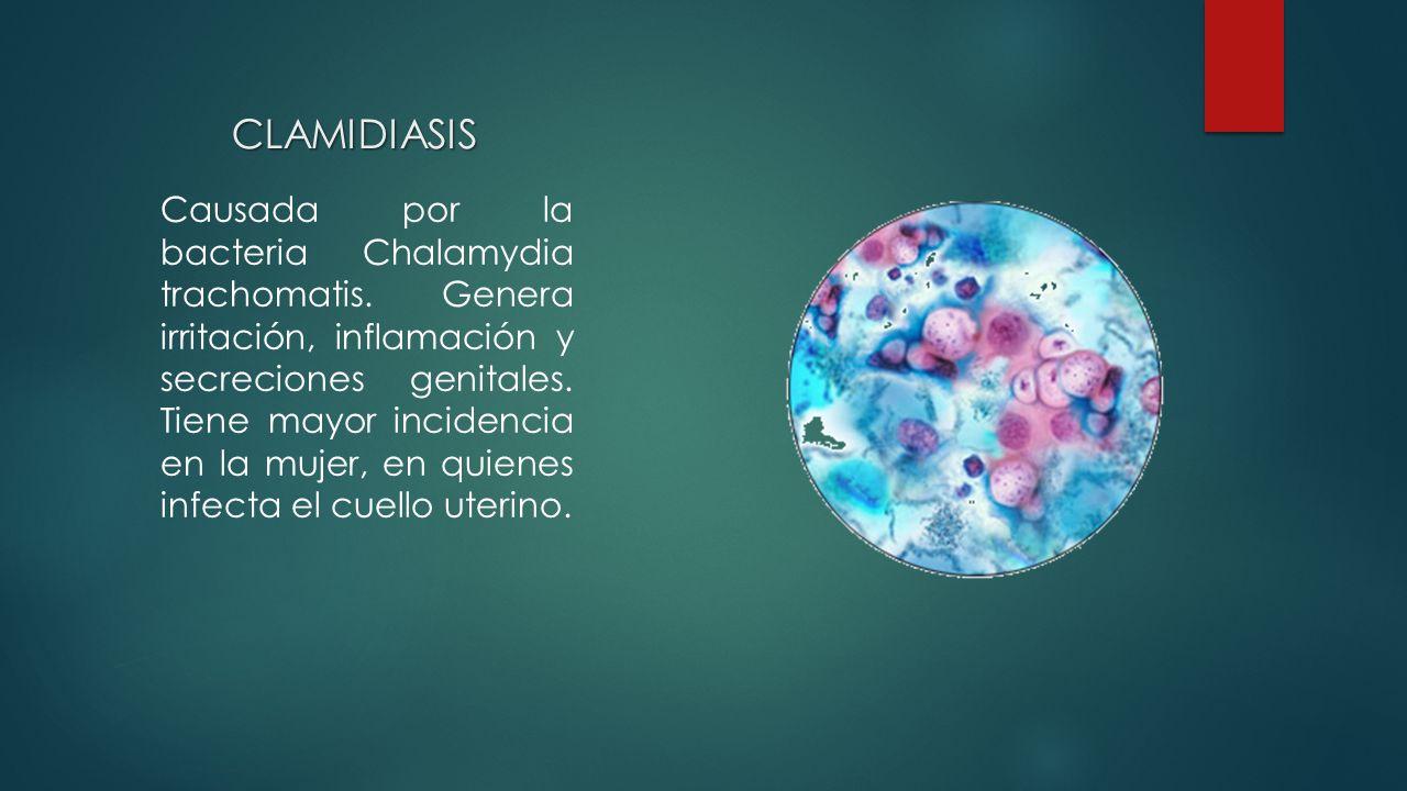 Causada por la bacteria Chalamydia trachomatis.