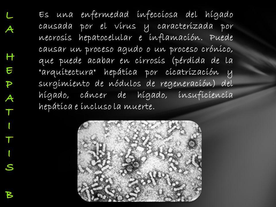 Es una enfermedad infecciosa del hígado causada por el virus y caracterizada por necrosis hepatocelular e inflamación. Puede causar un proceso agudo o