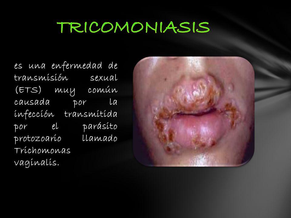 es una enfermedad de transmisión sexual (ETS) muy común causada por la infección transmitida por el parásito protozoario llamado Trichomonas vaginalis