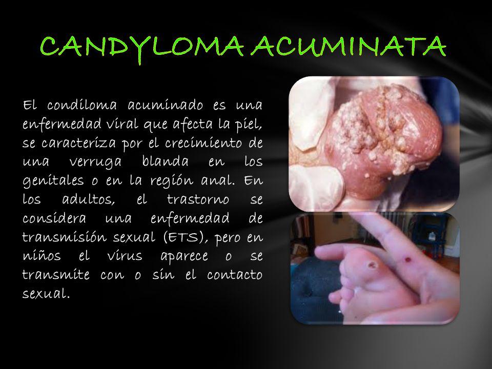 El condiloma acuminado es una enfermedad viral que afecta la piel, se caracteriza por el crecimiento de una verruga blanda en los genitales o en la re