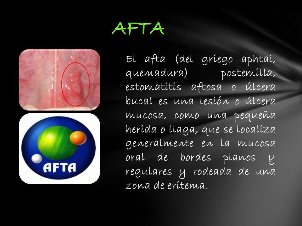 El afta (del griego aphtai, quemadura) postemilla, estomatitis aftosa o úlcera bucal es una lesión o úlcera mucosa, como una pequeña herida o llaga, q