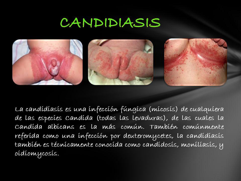 La candidiasis es una infección fúngica (micosis) de cualquiera de las especies Candida (todas las levaduras), de las cuales la Candida albicans es la