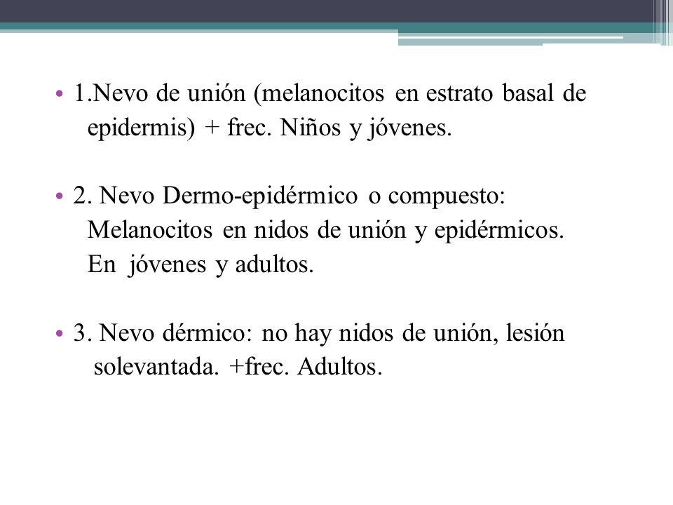 1.Nevo de unión (melanocitos en estrato basal de epidermis) + frec. Niños y jóvenes. 2. Nevo Dermo-epidérmico o compuesto: Melanocitos en nidos de uni