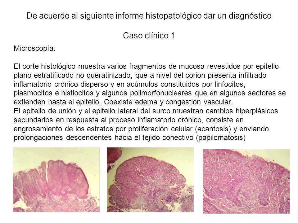 Microscopía: El corte histológico muestra varios fragmentos de mucosa revestidos por epitelio plano estratificado no queratinizado, que a nivel del corion presenta infiltrado inflamatorio crónico disperso y en acúmulos constituidos por linfocitos, plasmocitos e histiocitos y algunos polimorfonucleares que en algunos sectores se extienden hasta el epitelio.