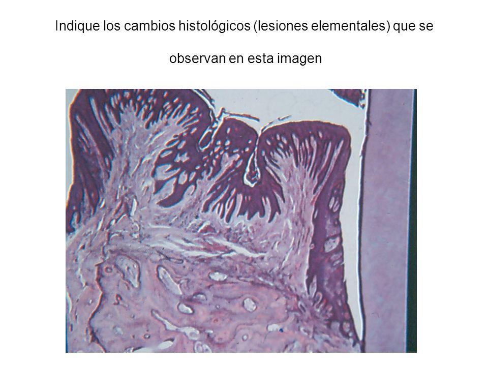 Indique los cambios histológicos (lesiones elementales) que se observan en esta imagen
