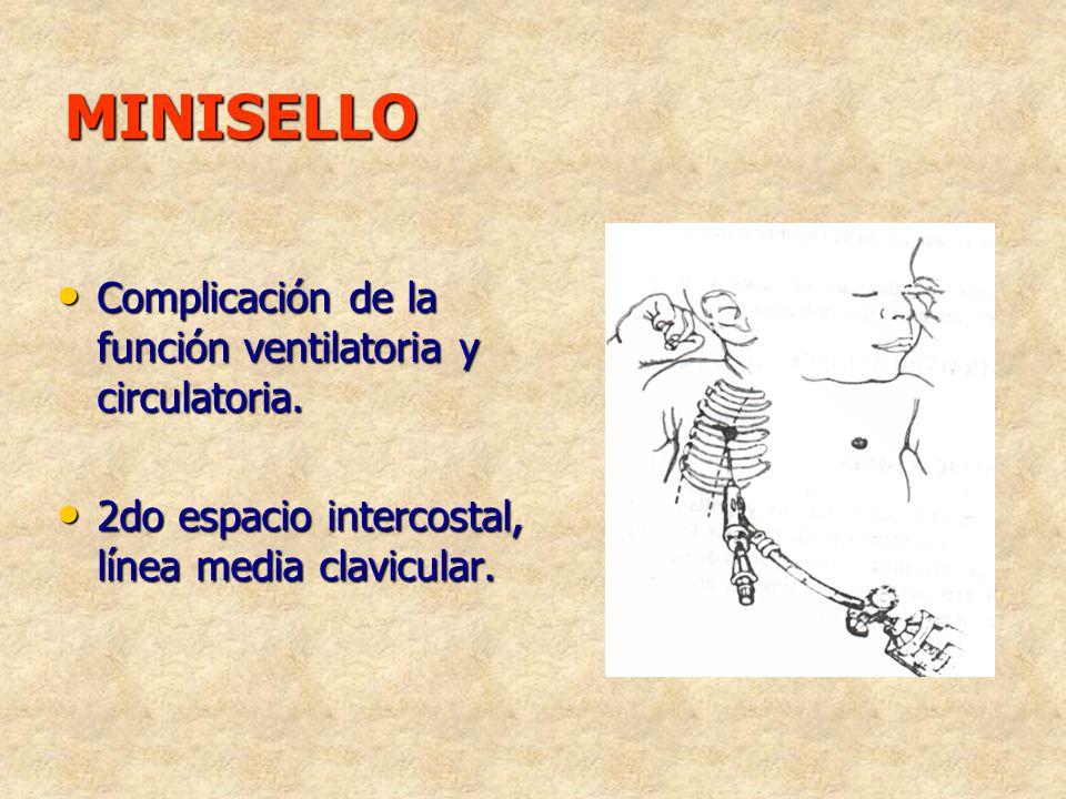 MINISELLO Complicación de la función ventilatoria y circulatoria. 2do espacio intercostal, línea media clavicular.