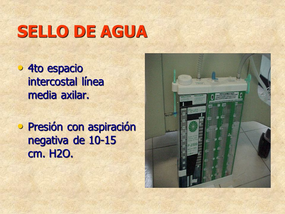 SELLO DE AGUA 4to espacio intercostal línea media axilar. 4to espacio intercostal línea media axilar. Presión con aspiración negativa de 10-15 cm. H2O
