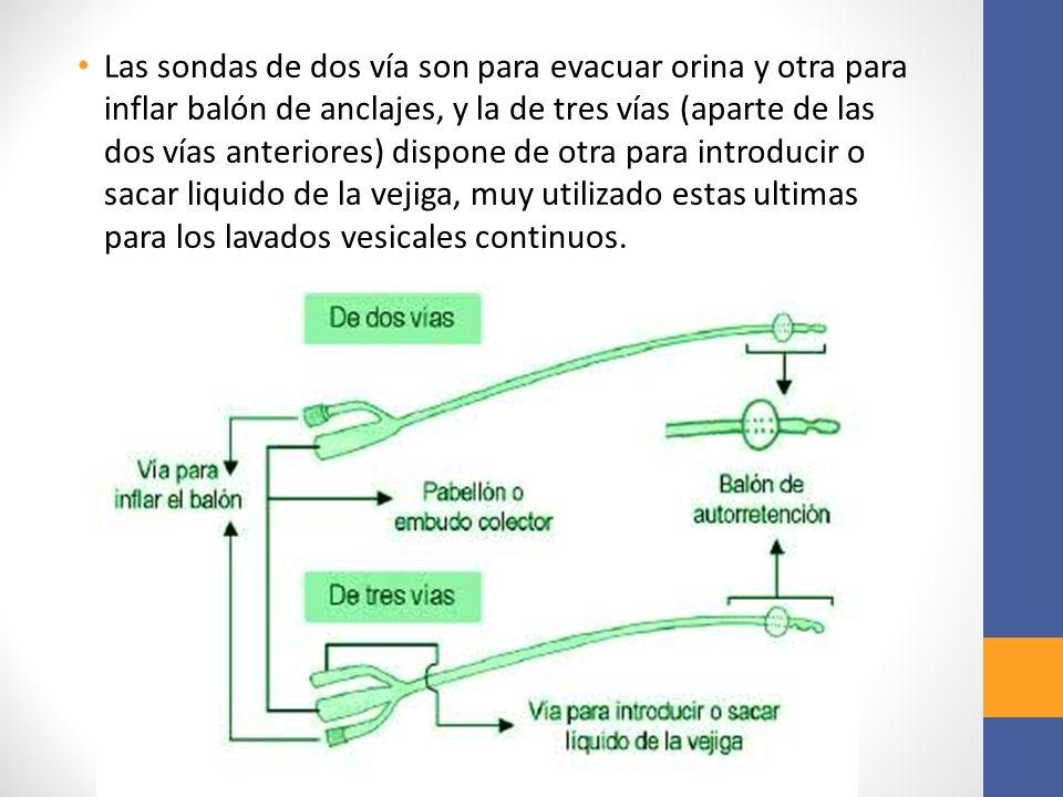 Las sondas de dos vía son para evacuar orina y otra para inflar balón de anclajes, y la de tres vías (aparte de las dos vías anteriores) dispone de ot