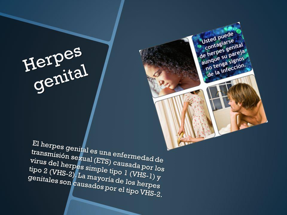 Herpes genital El herpes genital es una enfermedad de transmisión sexual (ETS) causada por los virus del herpes simple tipo 1 (VHS-1) y tipo 2 (VHS-2).