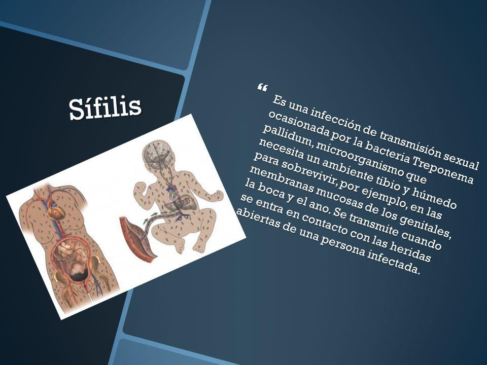 Papiloma humano  Es una enfermedad infecciosa causada por el VPH (virus del papiloma humano).