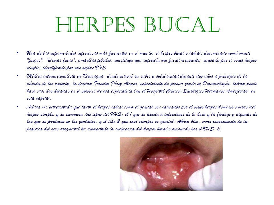 Herpes bucal Una de las enfermedades infecciosas más frecuentes en el mundo, el herpes bucal o labial, denominado comúnmente fuegos , úlceras finas , ampollas febriles, constituye una infección oro facial recurrente, causada por el virus herpes simple, identificado por sus siglas VHS.