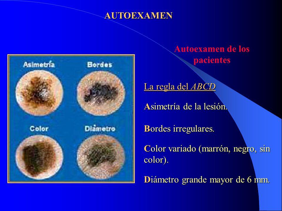 AUTOEXAMEN Autoexamen de los pacientes La regla del ABCD Asimetría de la lesión. Bordes irregulares. Color variado (marrón, negro, sin color). Diámetr