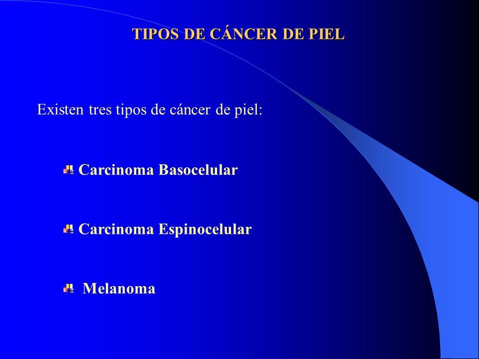 TIPOS DE CÁNCER DE PIEL Existen tres tipos de cáncer de piel: Carcinoma Basocelular Carcinoma Espinocelular Melanoma