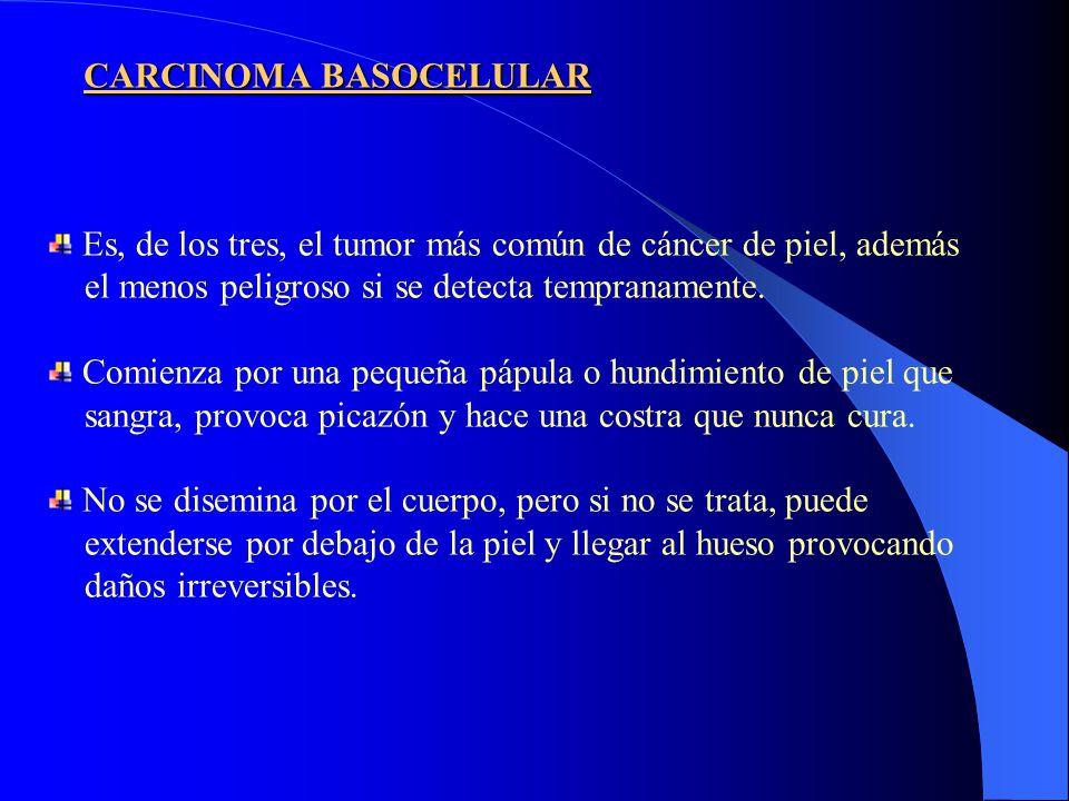 CARCINOMA BASOCELULAR Es, de los tres, el tumor más común de cáncer de piel, además el menos peligroso si se detecta tempranamente. Comienza por una p