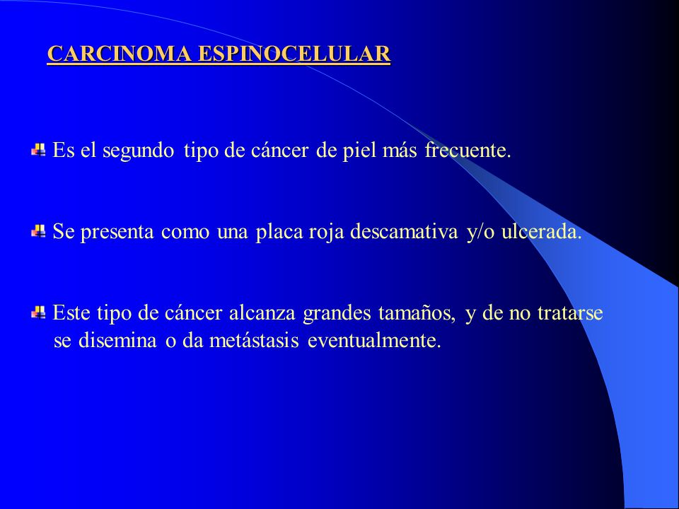 CARCINOMA ESPINOCELULAR Es el segundo tipo de cáncer de piel más frecuente. Se presenta como una placa roja descamativa y/o ulcerada. Este tipo de cán