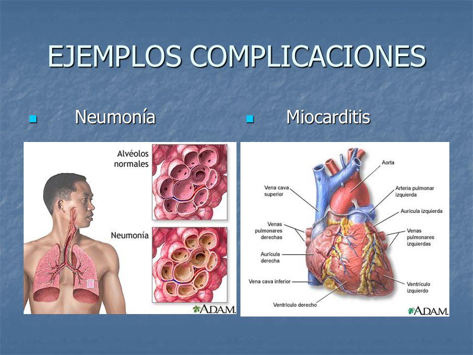EJEMPLOS COMPLICACIONES Neumonía Neumonía Miocarditis Miocarditis