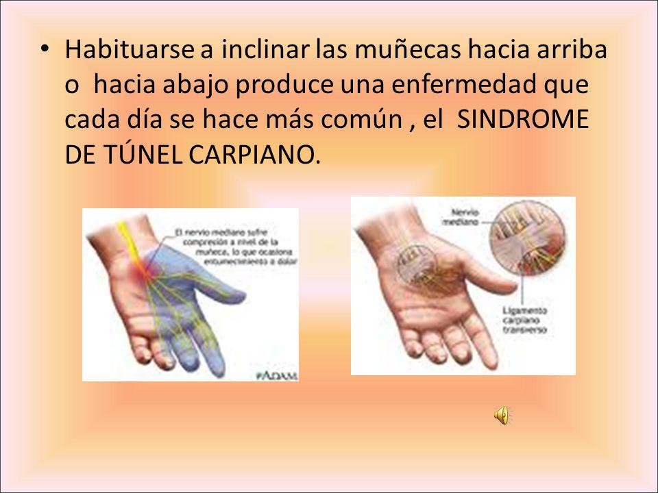 Habituarse a inclinar las muñecas hacia arriba o hacia abajo produce una enfermedad que cada día se hace más común, el SINDROME DE TÚNEL CARPIANO.