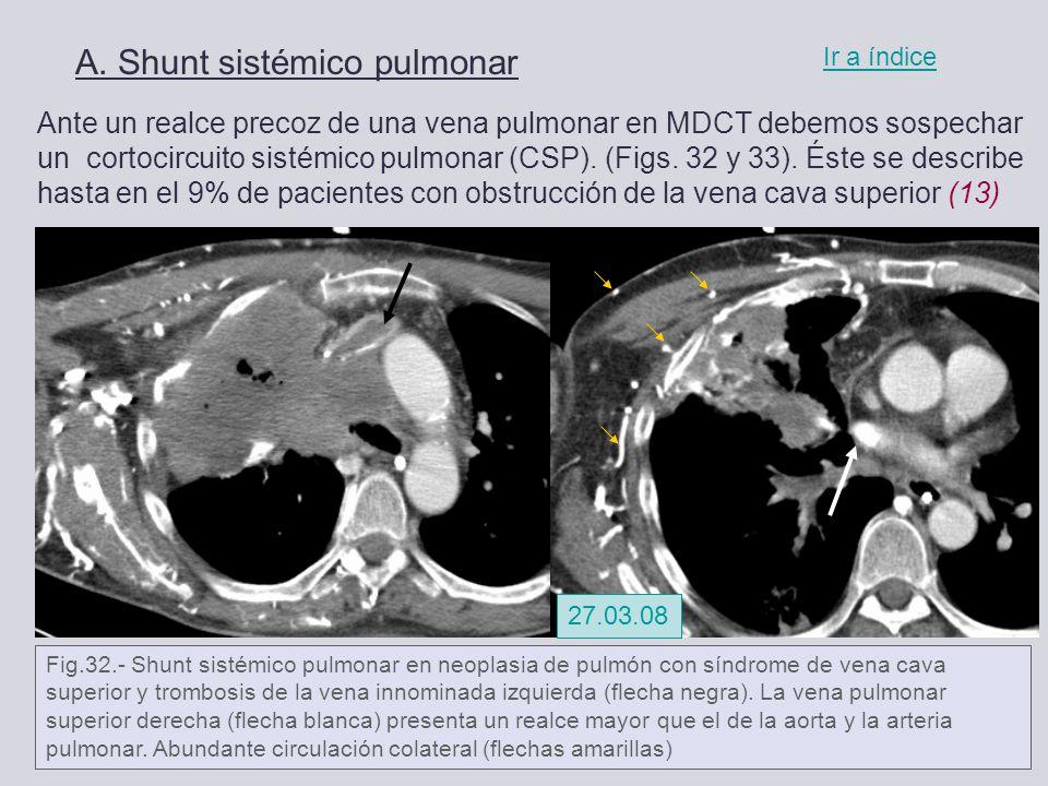 Moderno Anatomía Vena Innominada Izquierda Ilustración - Anatomía de ...