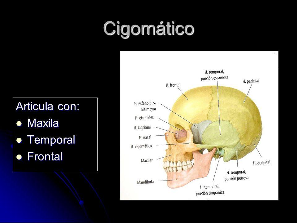 Cigomático Articula con: Maxila Maxila Temporal Temporal Frontal Frontal