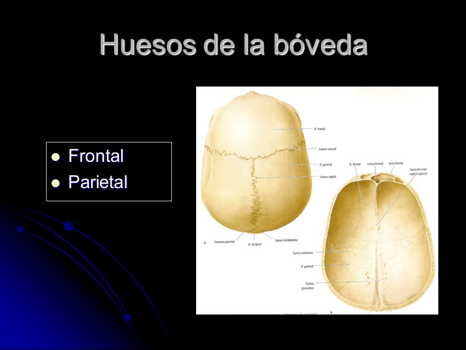Huesos de la bóveda Frontal Frontal Parietal Parietal