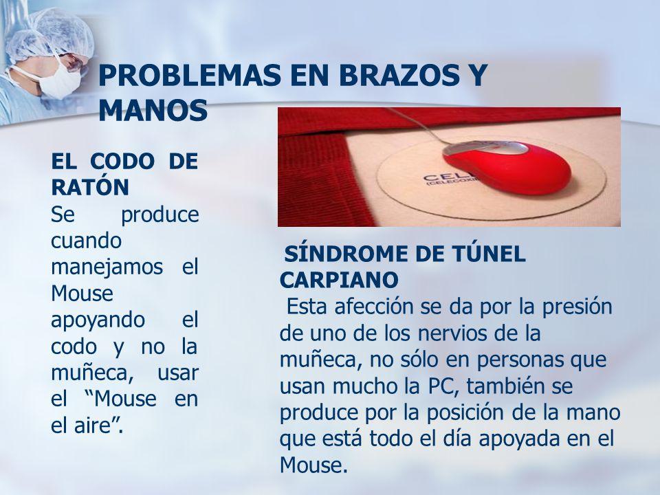 """PROBLEMAS EN BRAZOS Y MANOS EL CODO DE RATÓN Se produce cuando manejamos el Mouse apoyando el codo y no la muñeca, usar el """"Mouse en el aire"""". SÍNDROM"""