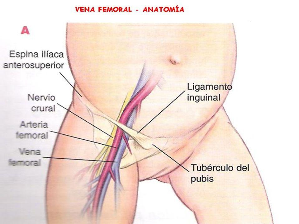 Acceso a la vena cava superior Las vena yugular externa, yugular interna, axilar o subclavia permiten acceder a la vena cava superior.