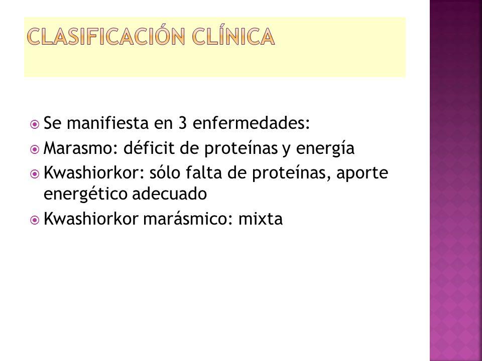  Se manifiesta en 3 enfermedades:  Marasmo: déficit de proteínas y energía  Kwashiorkor: sólo falta de proteínas, aporte energético adecuado  Kwas