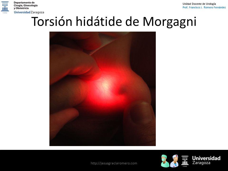 Unidad Docente de Urología Prof. Francisco J. Romero Fernández Torsión hidátide de Morgagni http://jesusgraciaromero.com