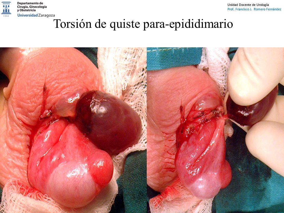 Unidad Docente de Urología Prof. Francisco J. Romero Fernández Torsión de quiste para-epididimario