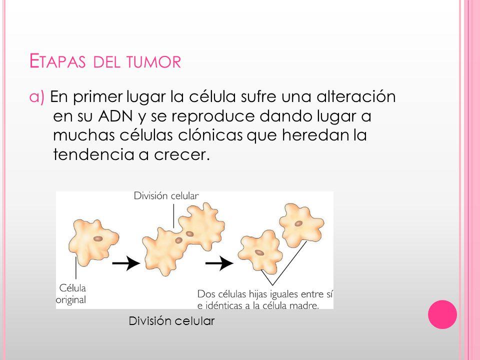 C ÁNCER DE PÁNCREAS El cáncer de páncreas o cáncer pancreático es un tumor maligno que se origina en la glándula pancreática.