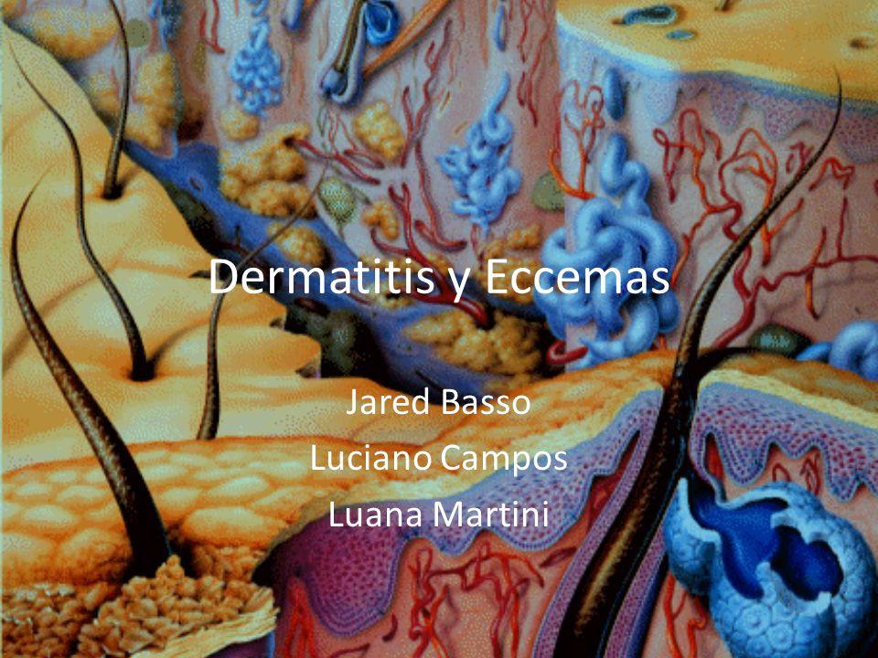 Dermatitis y Eccemas Jared Basso Luciano Campos Luana Martini