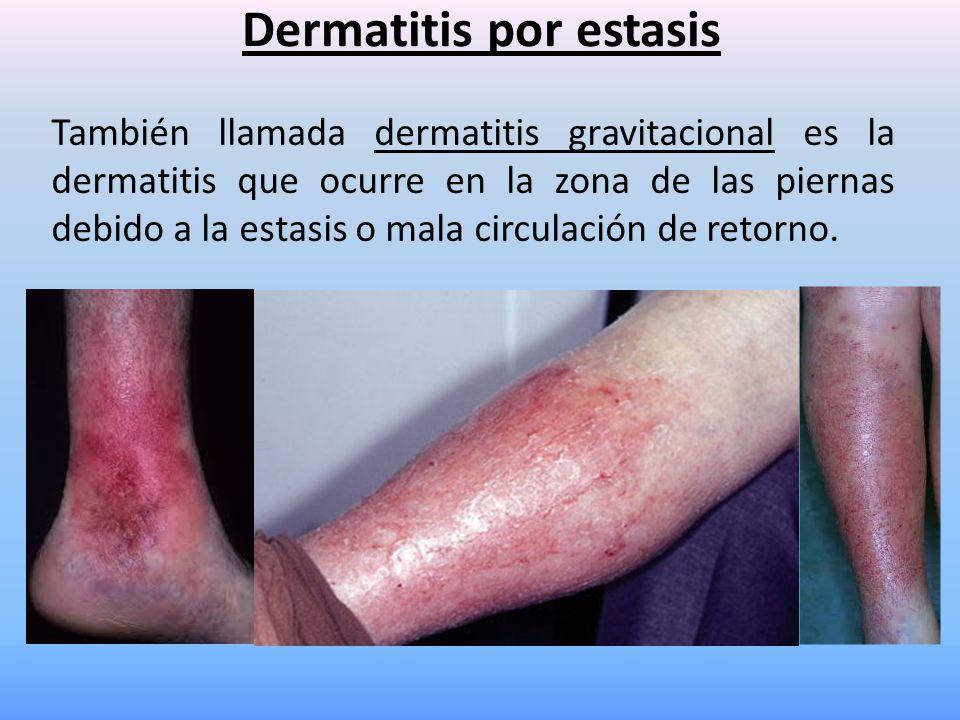 Dermatitis por estasis También llamada dermatitis gravitacional es la dermatitis que ocurre en la zona de las piernas debido a la estasis o mala circu