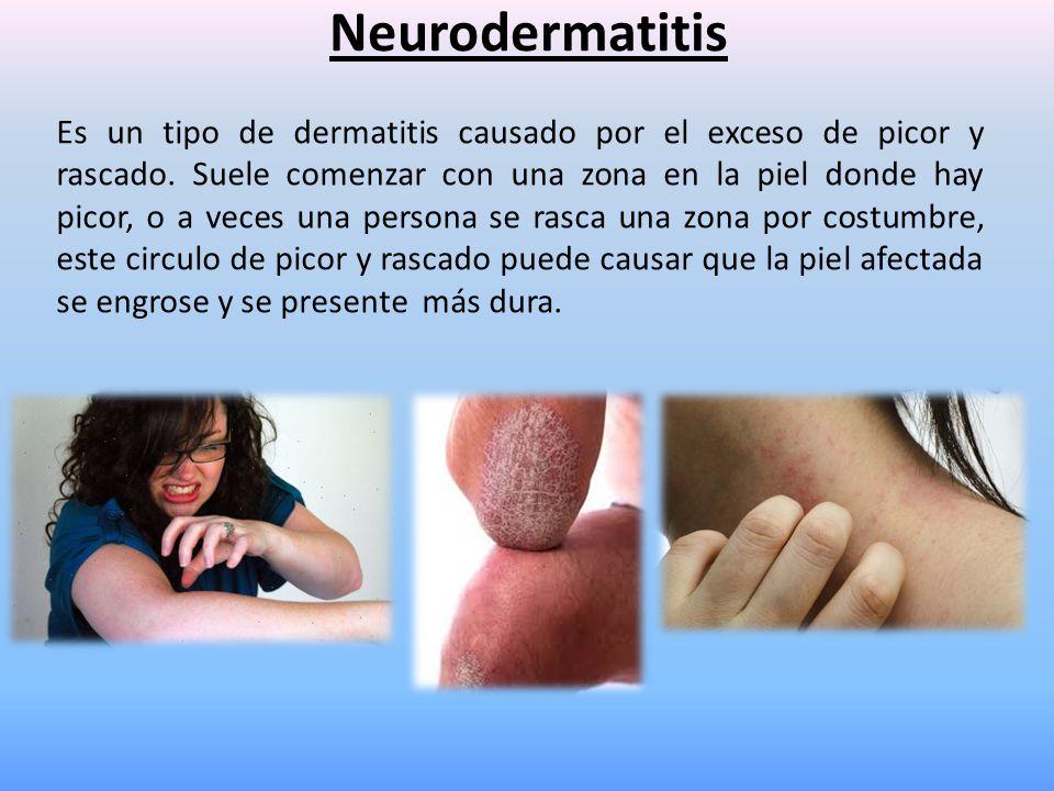 Neurodermatitis Es un tipo de dermatitis causado por el exceso de picor y rascado. Suele comenzar con una zona en la piel donde hay picor, o a veces u