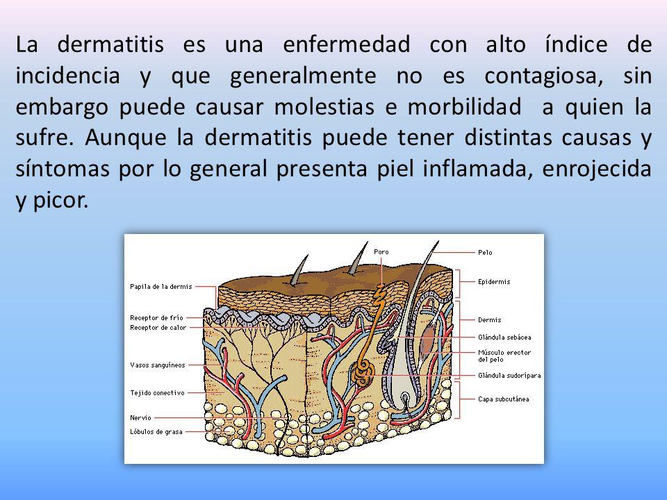 La dermatitis es una enfermedad con alto índice de incidencia y que generalmente no es contagiosa, sin embargo puede causar molestias e morbilidad a q