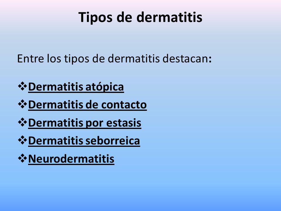 Tipos de dermatitis Entre los tipos de dermatitis destacan:  Dermatitis atópica  Dermatitis de contacto  Dermatitis por estasis  Dermatitis seborr